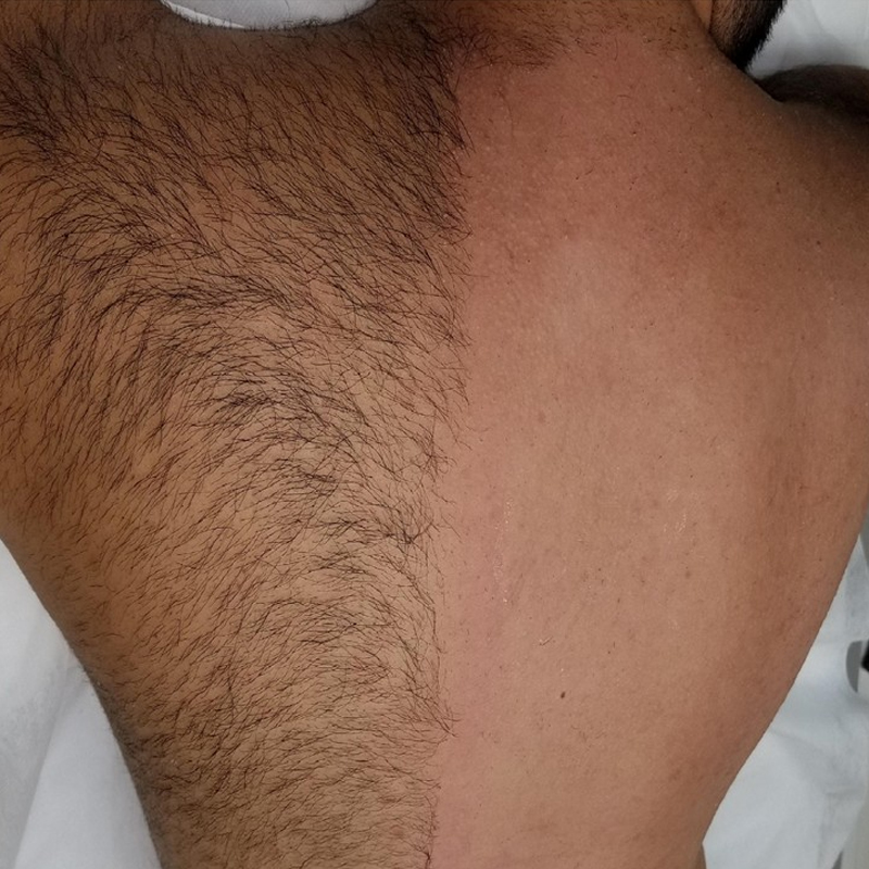 painless waxing for men